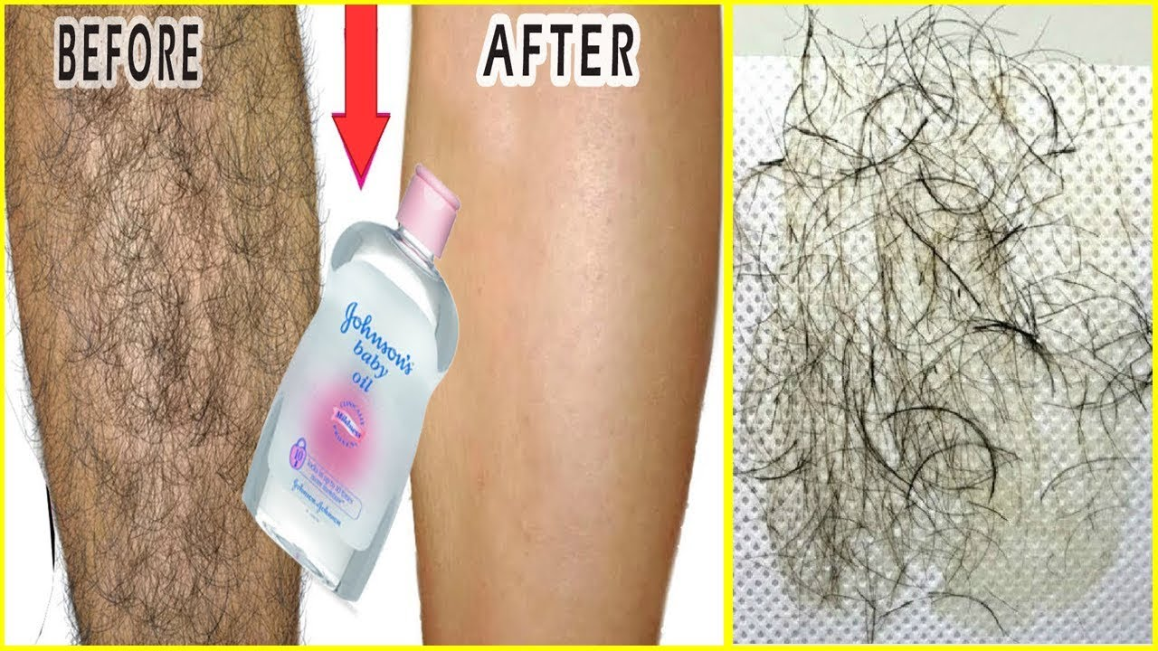 Magical oil to remove unwanted hair